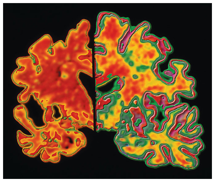 Medical imaging shows that the brain of a patient with Alzheimer's disease (<em>left</em>) differs from a healthy brain (<em>right</em>) not only in volume but also in the level of activity in many specific areas. <strong>A. Pakieka/Science Source.</strong>