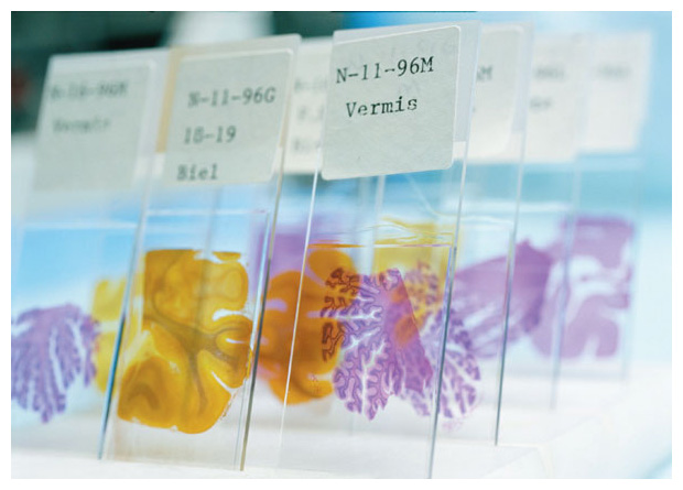 Brain tissue from a long-term aging study of nuns provides clues on the origin of Alzheimer's disease. The study was conducted in part at the Aging Center, University of Kentucky. <strong>Karen Kasmauski/Corbis.</strong>